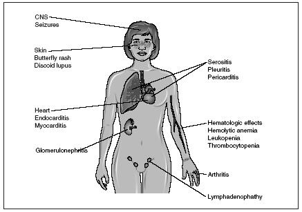 ailments: what can go wrong with the lymphatic system - the, Muscles