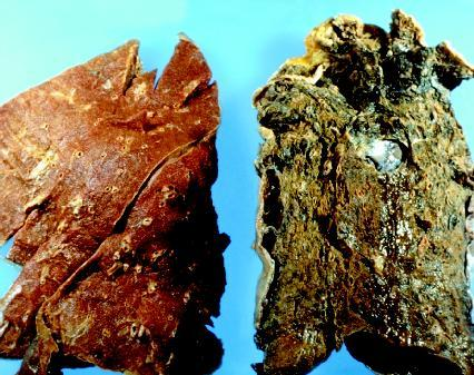 healthy lung (on the left) and a smoker's lung (on the right ...