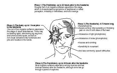 Fluoxetine Migraine Headache