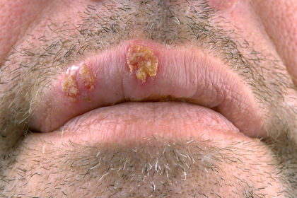 Herpes Infections 2598