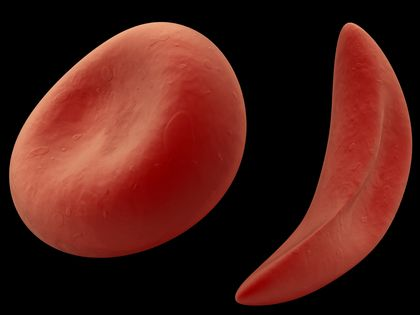 Sickle Cell Anemia Description 2750
